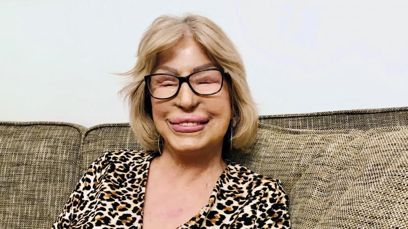 Kvinna med blond page, sitter i en soffa.