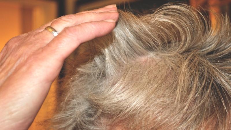Hand som drar över grått hår